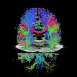 Важный шаг в магнитно-резонансной томографии — теперь в семь раз быстрее