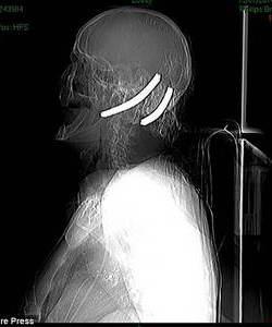 Рентген Хью Бакли