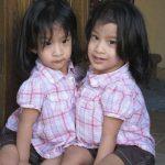 Сиамские близнецы Анжелика и Анджелина успешно разделены после 9-часовой операции