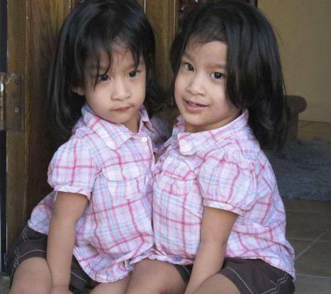 Сиамские близнецы Анжелика и Анджелина