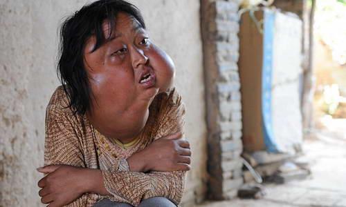 Китаянки с 7-ю опухолями на лице