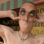 У Гарри Тернер резиновая стрейч-кожа из-за редкого генетического заболевания