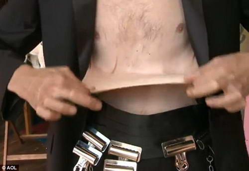 Гарри Тернер с резиновой кожей