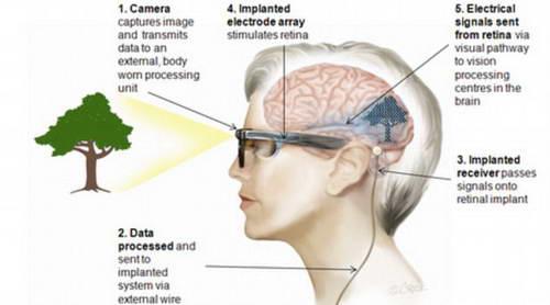 Схема работы бионического глаза