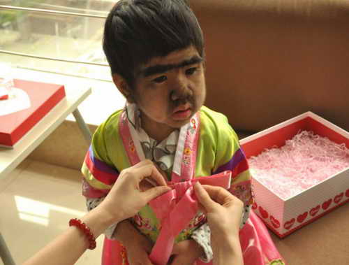 Цзин Цзин, 4 года из Китая с гипертрихозом