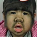 Китайская девочка Цзин Цзин с врожденным гипертрихозом приступила к лечению