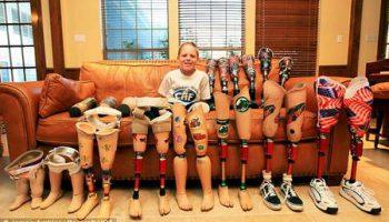 9-летний Коди Маккасленд с ампутированными ногами победитель многих соревнований