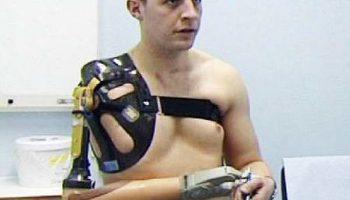 Британец-афганец с бионическим протезом руки
