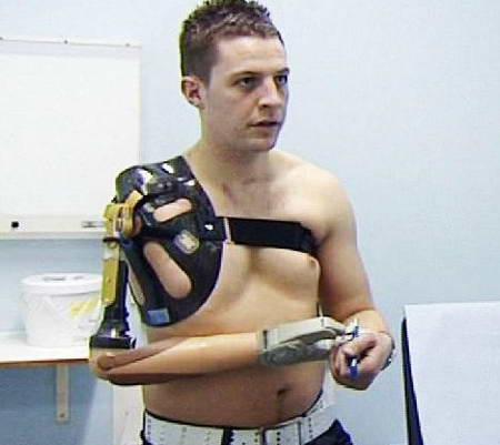 био-рука протез