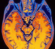 Прорыв в диагностике болезни Альцгеймера: результат в течение дня