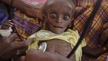 Гуманитарная катастрофа в Восточной Африке: глаза голода – это страшно