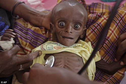 Глаза голода в Кении