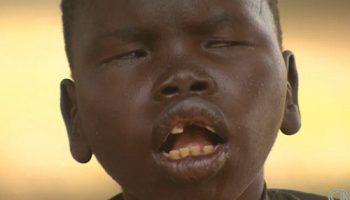 Врачи в шоке: в Уганде неизвестная болезнь из детей делает зомби