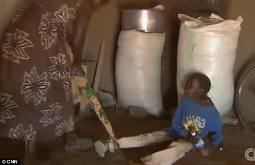 """Дети """"зомби"""" - таинственная болезнь в Африке"""