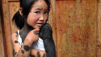 Шестилетняя китаянка покрыта густой черной шерстью из-за редкой болезни