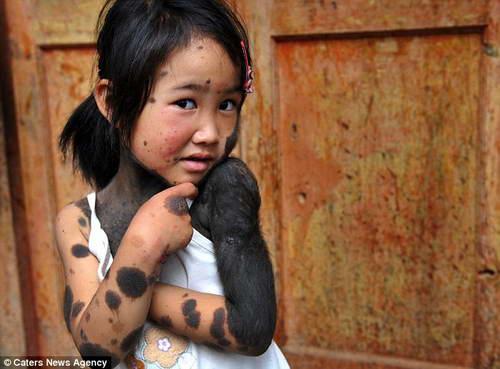 Лю Янгли, 6 лет, Китай вся в черных волосах