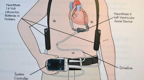 Схема титанового насоса кровообращения