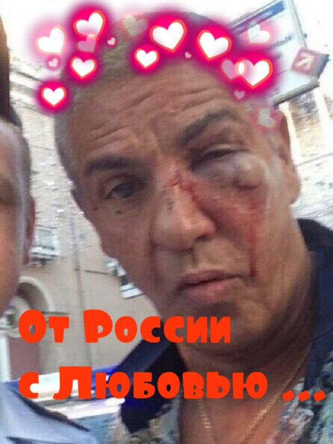 Сами Насери в Москве после драки