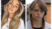 Фото Анны Хилькевич до и после пластической операции