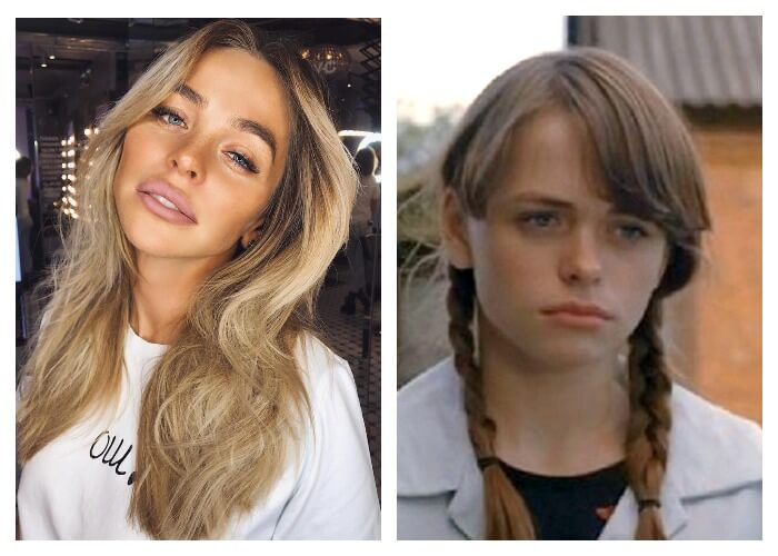 Анна Хилькевич до и после пластической операции