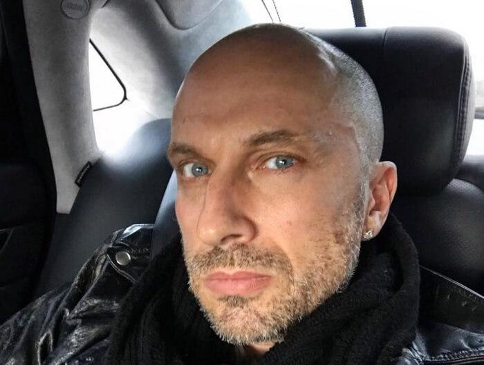 Что с лицом у Дмитрия Нагиева