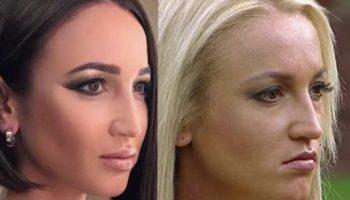 Ольга Бузова: фото до и после пластической операции