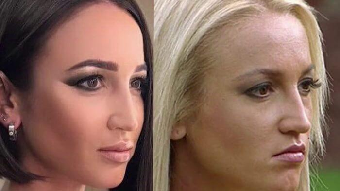 Ольга Бузова до и после пластики