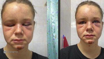 Карантин ведет к домашнему насилию. Алену Чистякову домогался и избил собственный брат