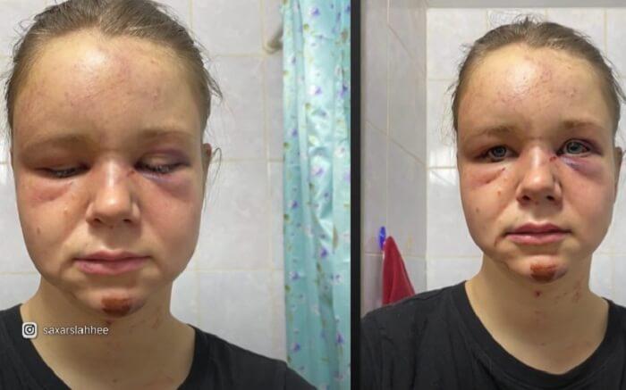 Алена Чистякова избитая братом